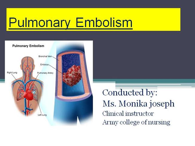 Pulmonary Embolism Ppt |authorSTREAM