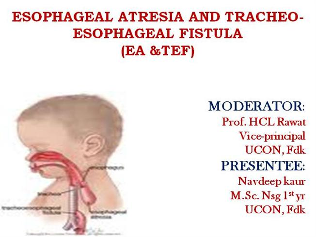 Oesophagus ppt for ss.